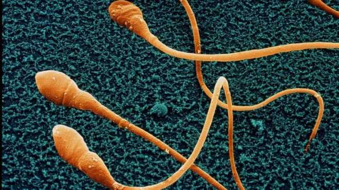 Penurunan Jumlah Sperma dan 'Kepunahan' Umat Manusia