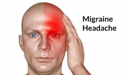 Beberapa Cara Penanganan Migrain (Nyeri Sebelah Kepala)