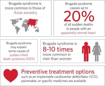 Sindrom Brugada, Penyebab Kematian Mendadak Orang Asia, yang Semakin Sering Terjadi