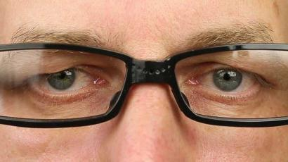 Mata Minus? Jangan-jangan Gejala Glaukoma!