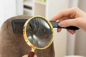 Manfaat Kutu Rambut