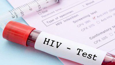 Tes HIV Dilakukan oleh Teman dengan Alat Tes yang Dibeli Sendiri