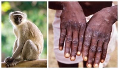 Waspadai Virus Cacar Monyet (Monkeypox Virus)
