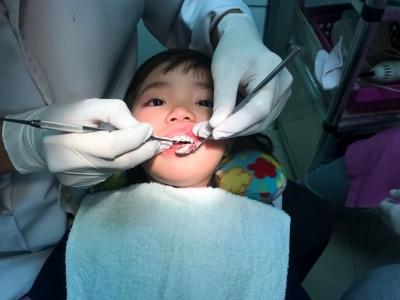 Perawatan Saraf Gigi Pada Anak